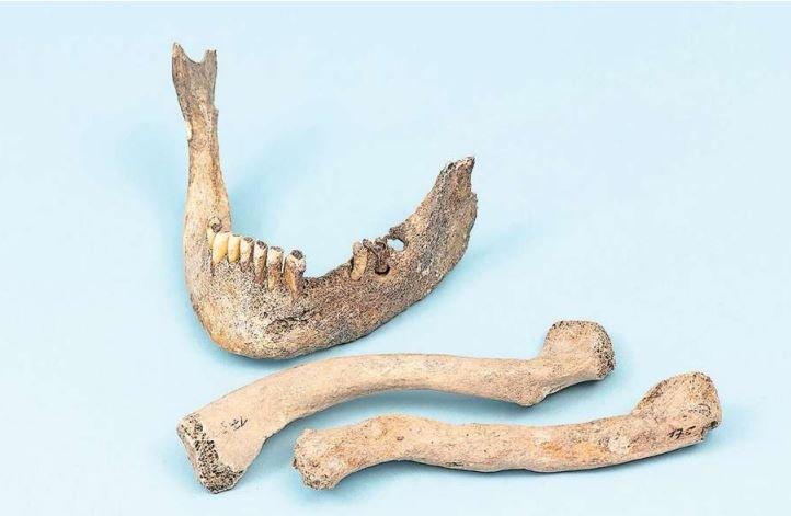 Skelett-Teile aus Baar (7. Jahrhundert n. Chr.) zeugen von Zahnschäden und gebrochenen Knochen. (Bild PD)