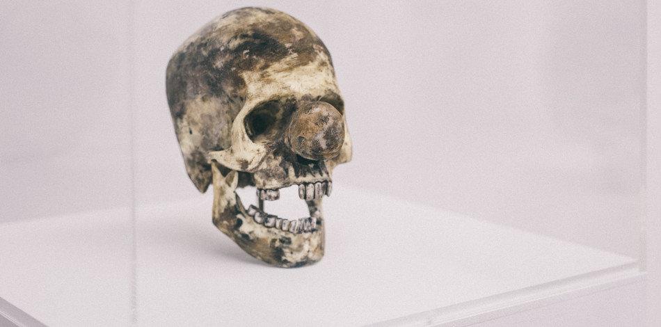 Eines der Exponate der Ausstellung. Vik Muniz: Clown Skull. (Bild: Philippe Hubler)